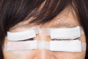 Blepharoplasty-Procedure- Everything-you-need-to-know-121615-07