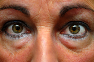 Blepharoplasty-Procedure- Everything-you-need-to-know-121615-11