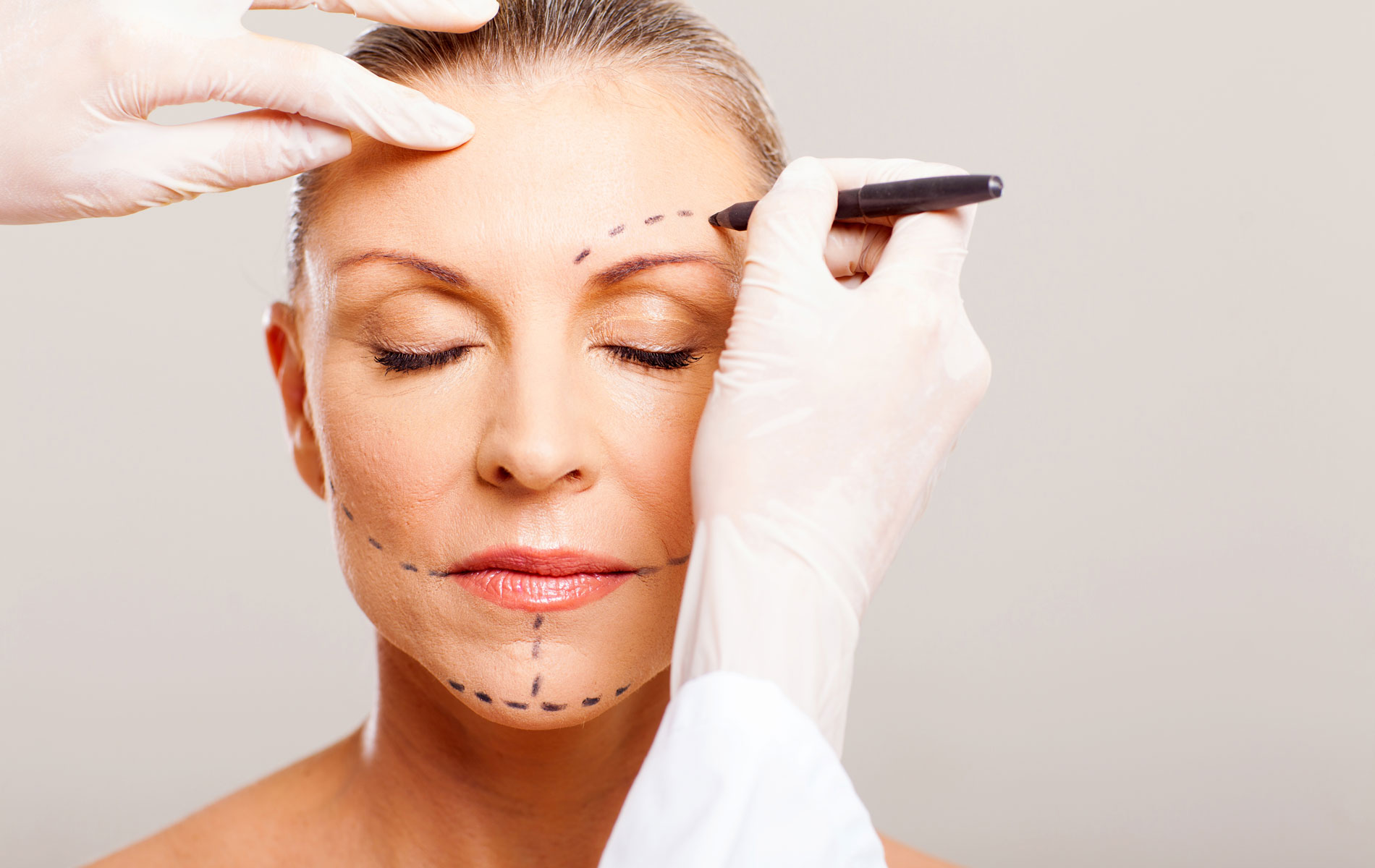 Face Lift/Rhytidectomy: What's Involved