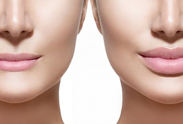 Lip Augmentation: What's Involved in Plumping Your Pout