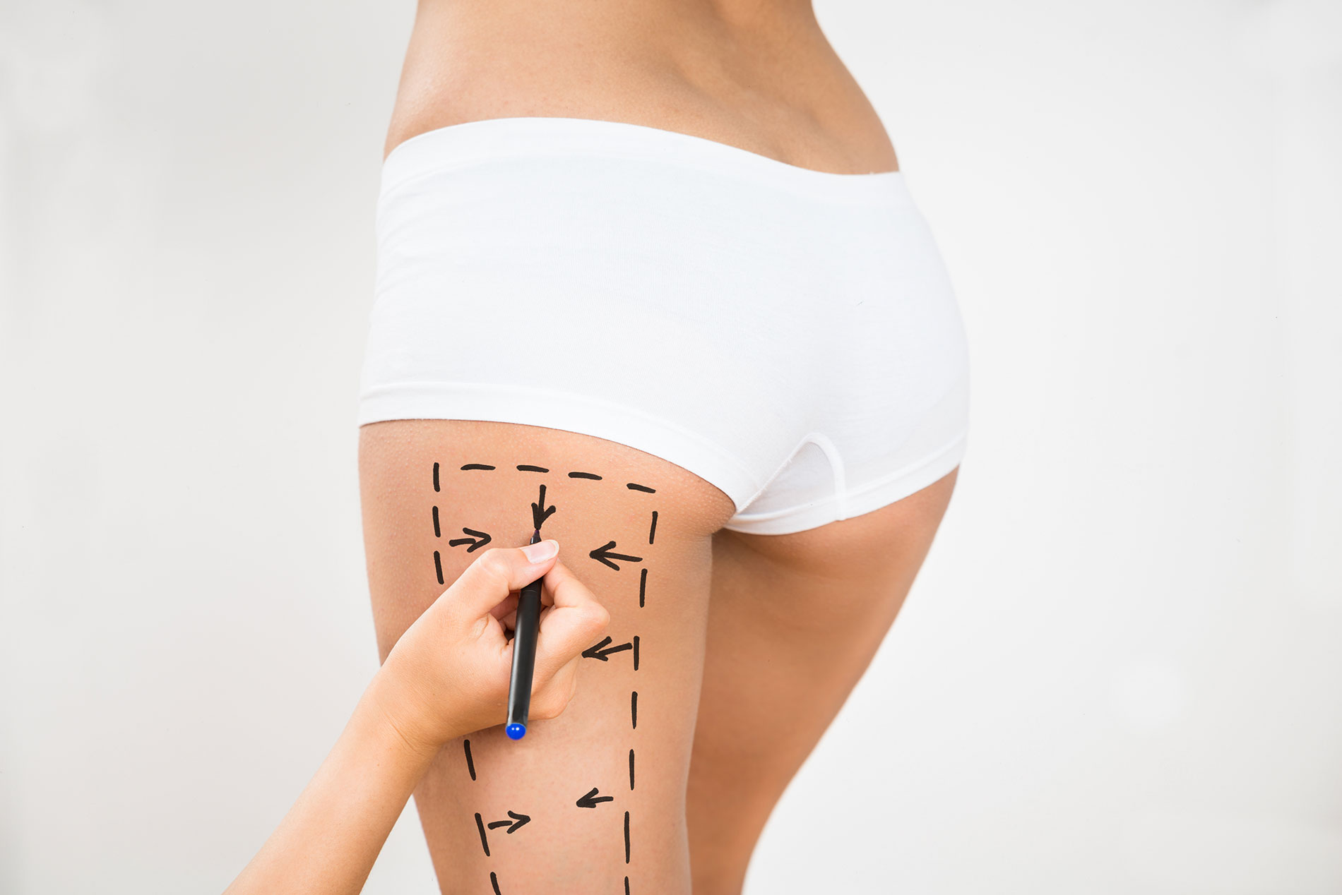 Thigh Lift: What Is It