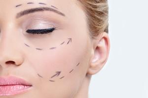 Face-Lift-Rhytidectomy-121615-05