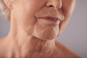 Face-Lift-Rhytidectomy-121615-06