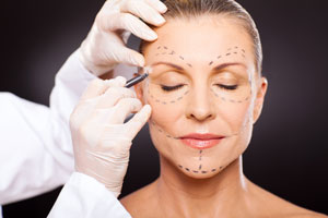 Face-Lift-Rhytidectomy-121615-09
