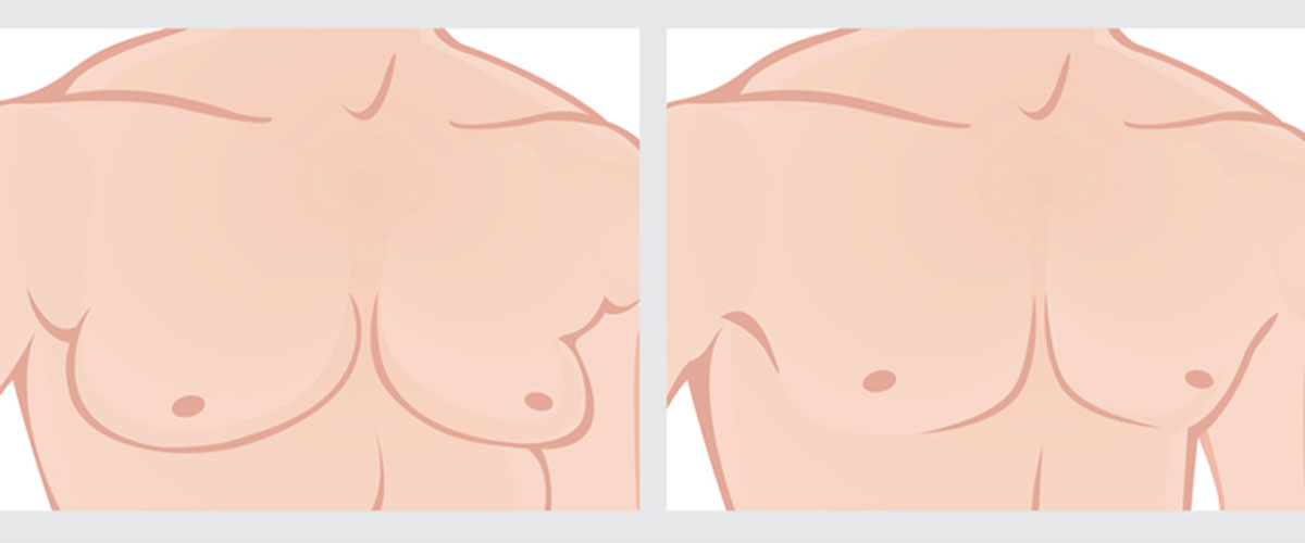 Gynecomastia-An-overview-121615-02