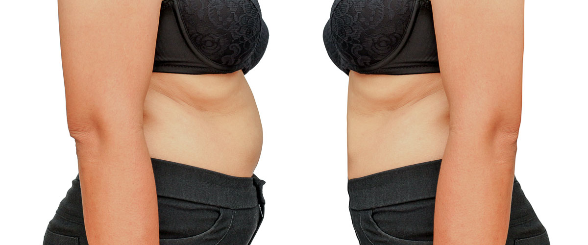 LIPOSUCTION-Everything-you-need-to-know-about this-type-of-contouring-121615-01
