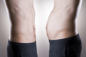 LIPOSUCTION-Everything-you-need-to-know-about this-type-of-contouring-121615-13