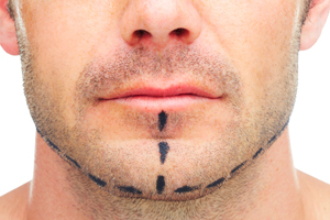 Chin-Implants-and-You-Knowing-When-To-Get-One-3