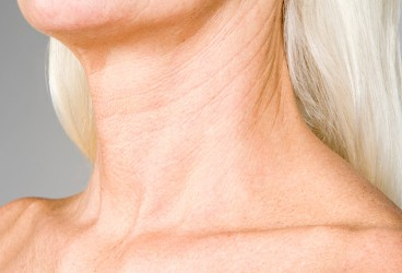 Neck Lift Costs: Your Comprehensive List