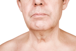 Neck-Lift-Costs-6