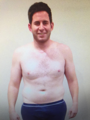 Tarek El Moussa after his iodine treatment and 3 months of limited movement post back surgery.