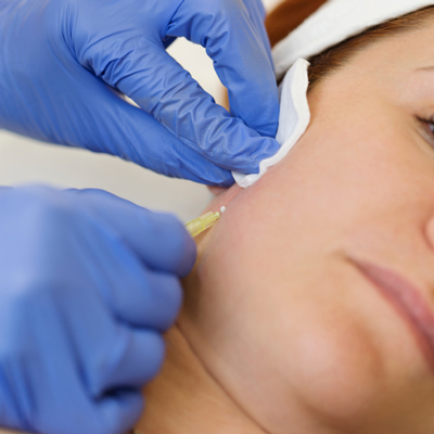Things-That-Can-Go-Wrong-with-Dermal-Fillers-2