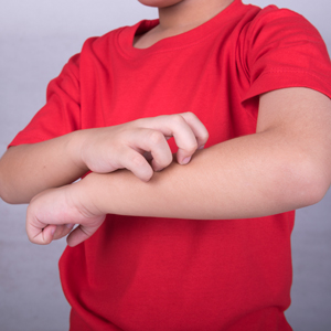 Things-You-Can-Do-To-Fight-Eczema-In-Kids-4