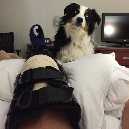 Looking-at-the-Bright-Side-after-Knee-Surgery-3
